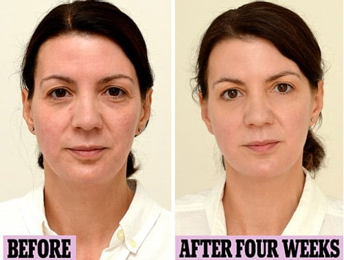 Woman Drinks Gallon Of Water Every Day For Four Weeks And The Final Picture Results Are Shocking